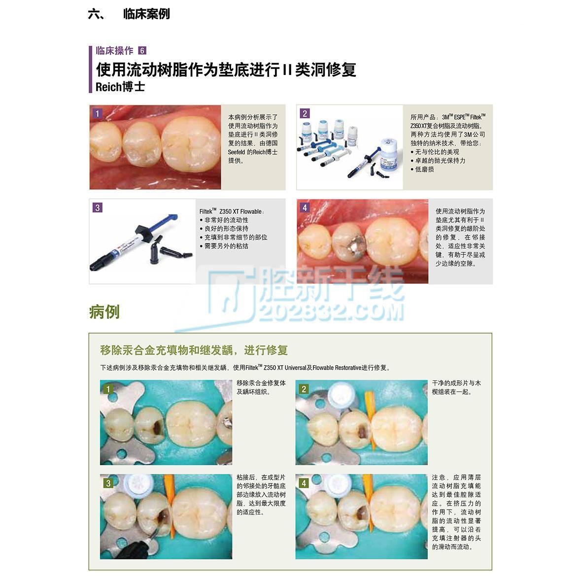 3M ESPE Z350XT 流动树脂(纳米级别)3M流体树脂 A3色注射器装 2g2支 20个注射头-6.jpg