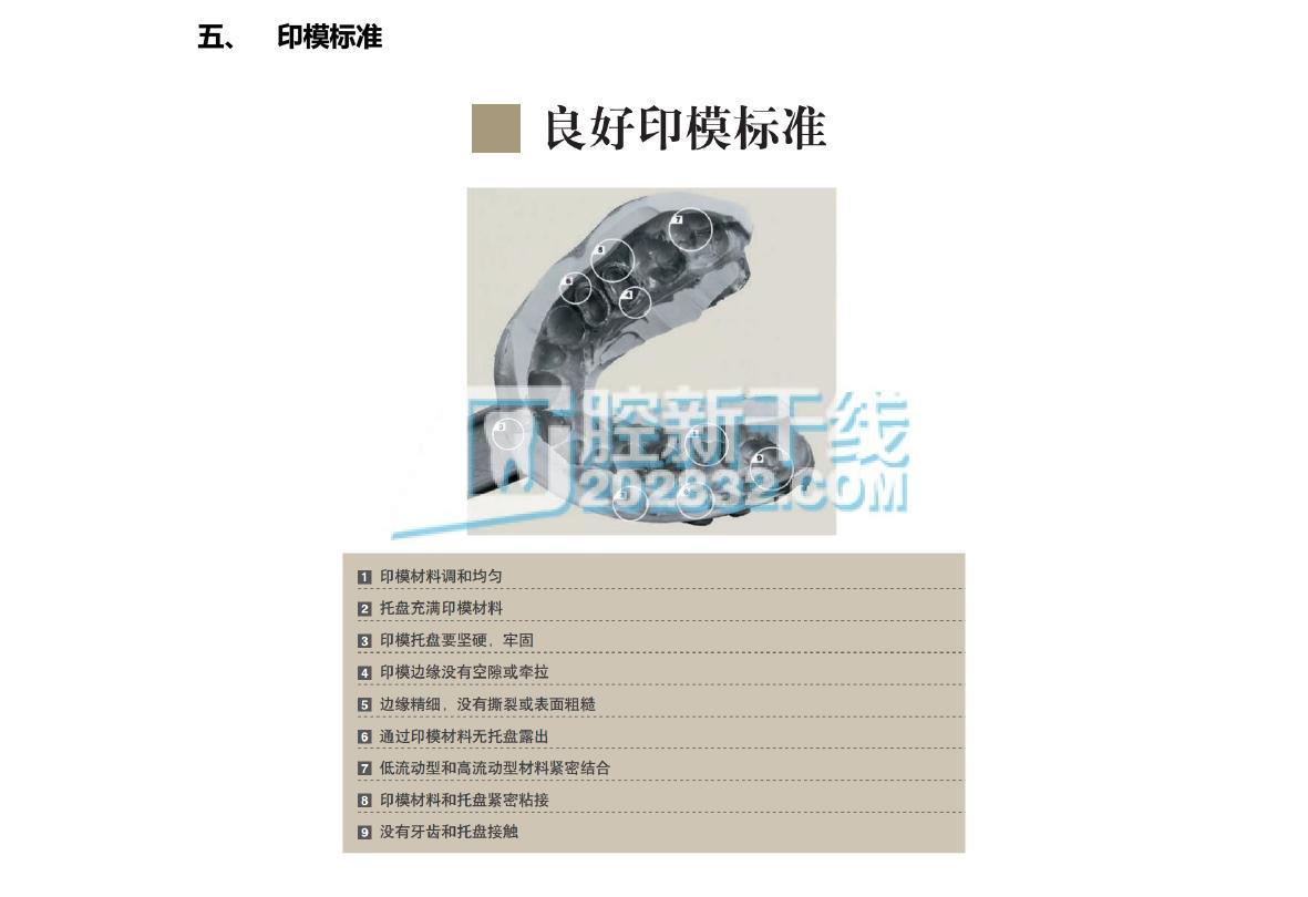 3M ESPE Express™ Garant™ Light Body Regular 精细硅橡胶印模材 枪混 轻体 高流体常规固化型(绿色) (内含2支50mL印模材,10个混合头)-4.jpg